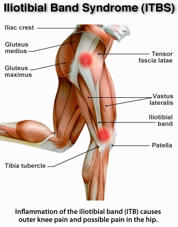 Iliotibial Band Syndrome Treatment