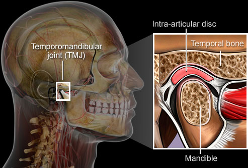 TMJ Treatment