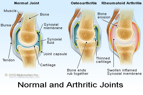 Effective Arthritis Treatment With Class Iv Laser Therapy