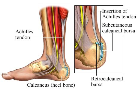 Achilles Tendonitis Treatment High Power Laser Therapy
