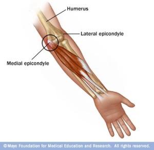 Golfers Elbow Treatment