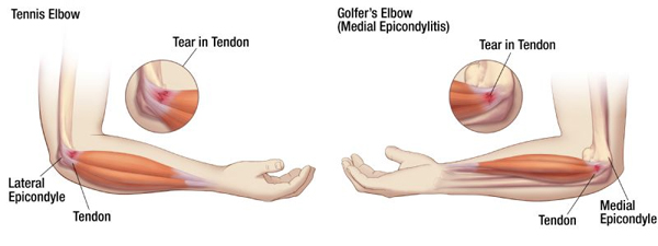 Golfers Elbow vs. Tennis Elbow
