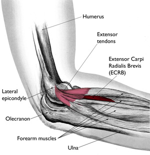 Tennis Elbow Treatment High Power Laser Therapy Center